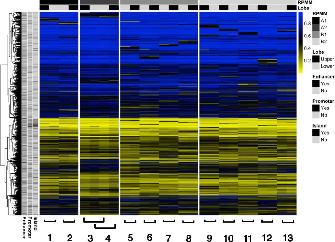 DNA Methylation Changes in Regional Lung Macrophages Are